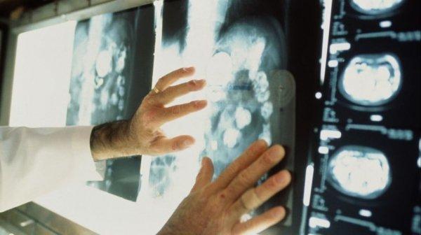Алтайский край отметился резким ростом онкологических заболеваний