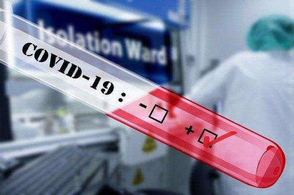 23 человека с коронавирусной инфекцией погибли за день на Алтае